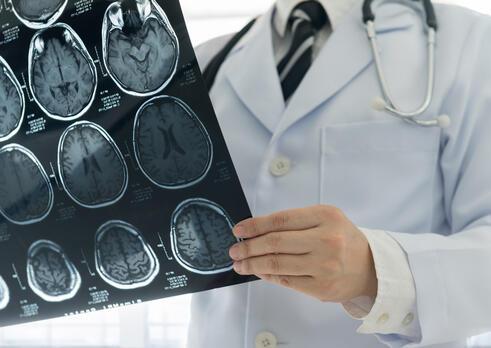 Neurológ
